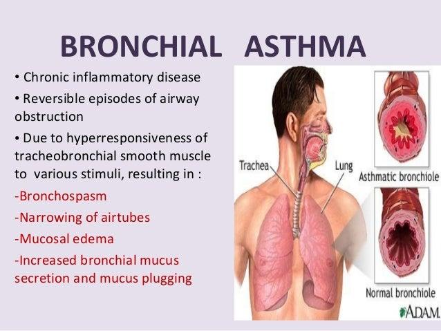 19bronchial asthma