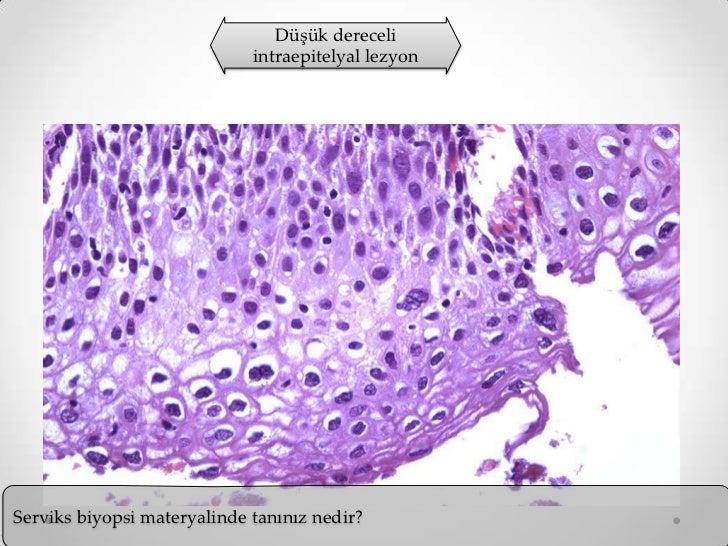 Endometrioz nedir