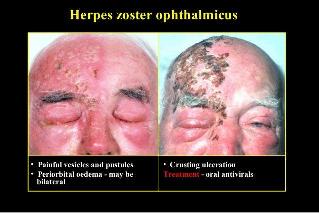 03 diffuse eyelid diseases