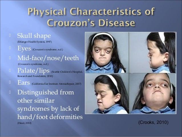 Crouzon's Syndrome