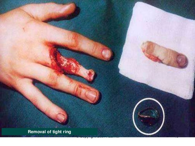 Wedding Ring Work Accidents