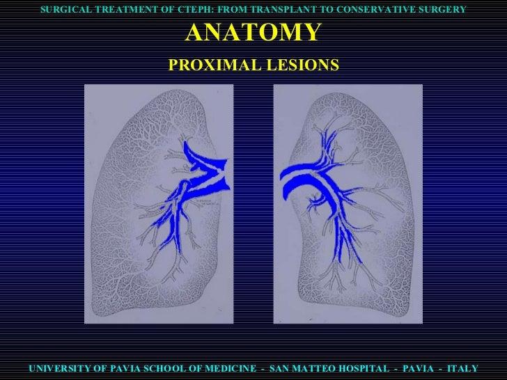 ipertensione polmonare postembolica-cteph