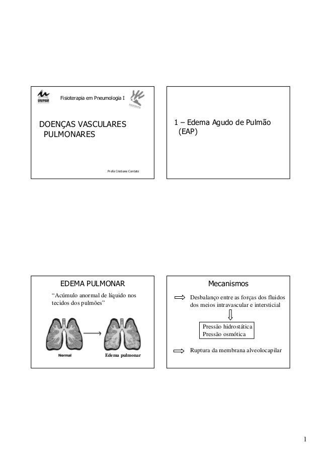 1 Fisioterapia em Pneumologia I DOENÇAS VASCULARES PULMONARES Profa Cristiane Contato 1 – Edema Agudo de Pulmão (EAP) EDEM...