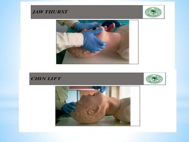 *Circulation and hemorrhage control *Stop bleeding whether of external hemorrhage or internal. *Assess pulse temprature sk...