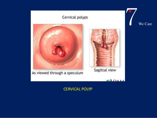 What does implantation bleeding look like pictures