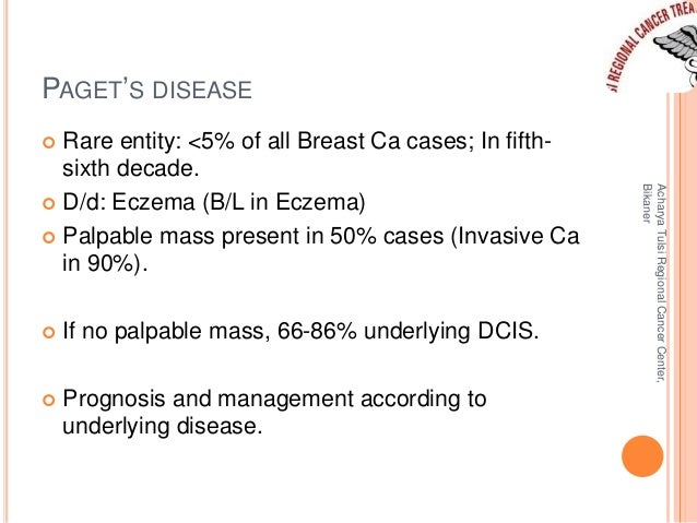 PAGET'S DISEASE   Rare entity: <5% of all Breast Ca cases; In fifth-sixth  decade.   D/d: Eczema (B/L in Eczema)   Palp...