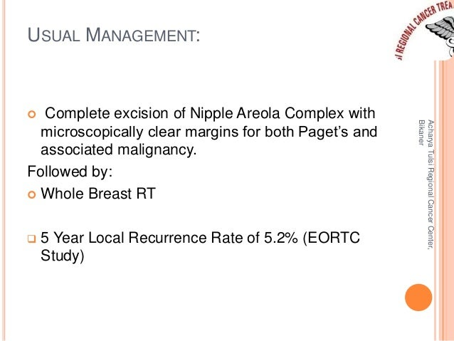 USUAL MANAGEMENT:   Complete excision of Nipple Areola Complex with  microscopically clear margins for both Paget's and  ...