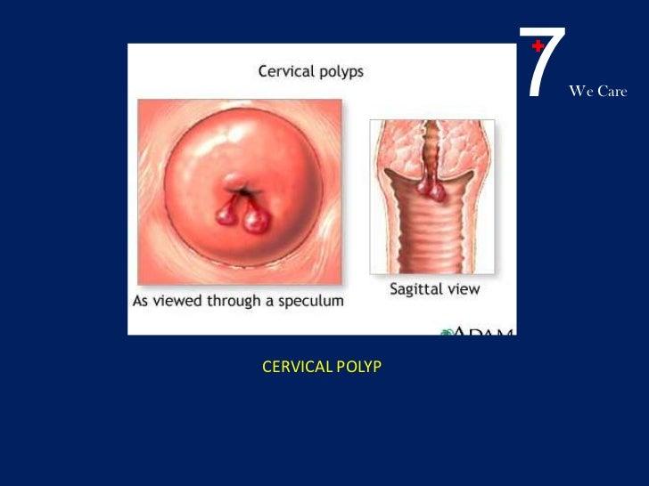 Early pregnancy bleeding.ppt