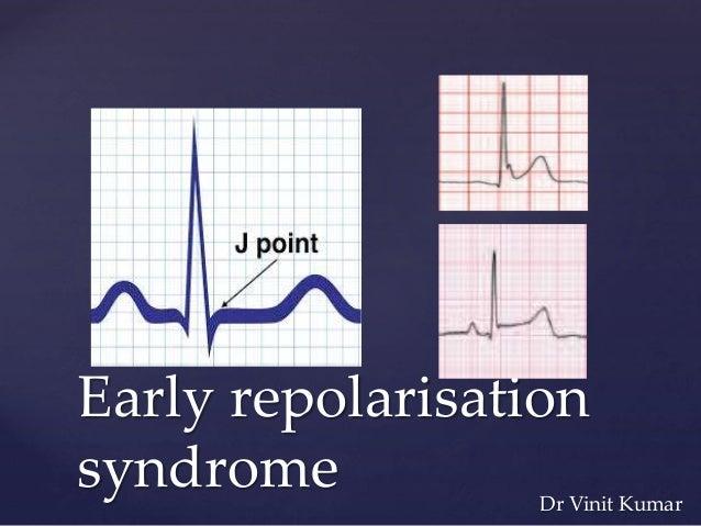 { Early repolarisation syndrome Dr Vinit Kumar