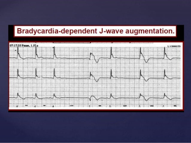 { Inheritance of Early Repolarization and Family Screening