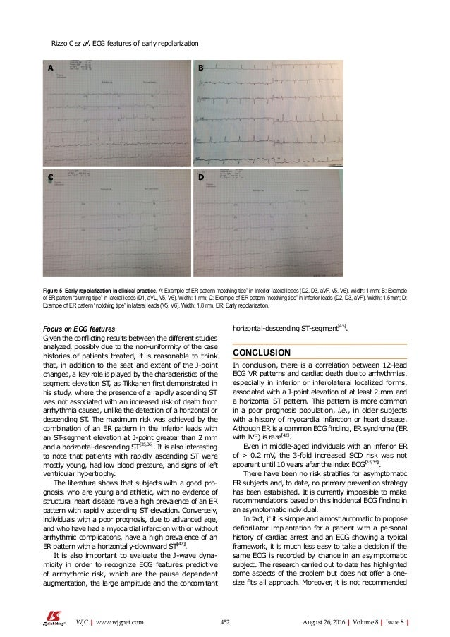 452 August 26, 2016|Volume 8|Issue 8|WJC|www.wjgnet.com Focus on ECG features Given the conflicting results between the di...