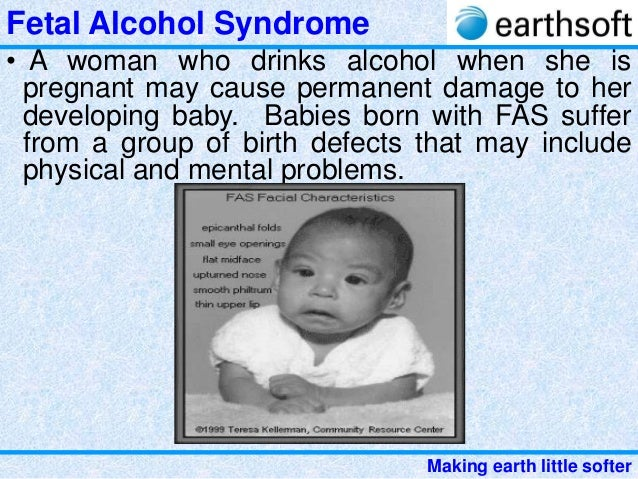 stopping fetal alcohol syndrome Tobacco, alcohol , drugs, and disorder is fetal alcohol syndrome the growth of the fetus and cause preterm birth and fetal death if you need help quitting.