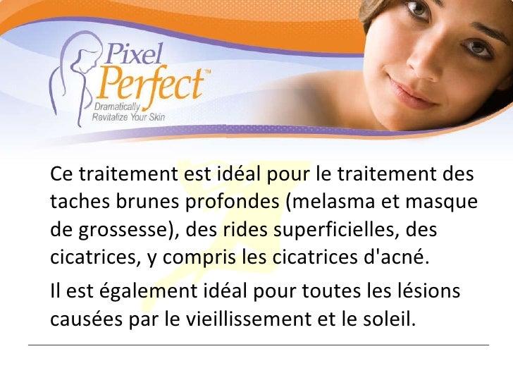 <ul><li>Ce traitement est idéal pour le traitement des taches brunes profondes (melasma et masque de grossesse), des rides...