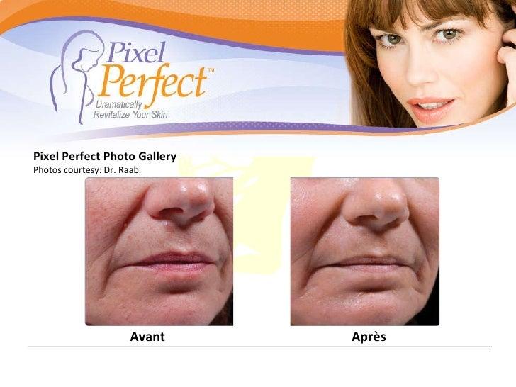 Pixel Perfect Photo Gallery Photos courtesy: Dr. Raab Avant Après