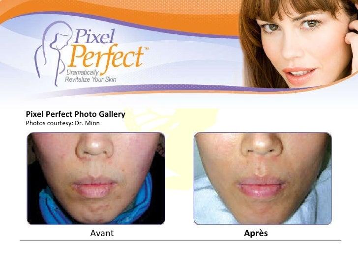 Avant Après Pixel Perfect Photo Gallery Photos courtesy: Dr. Minn