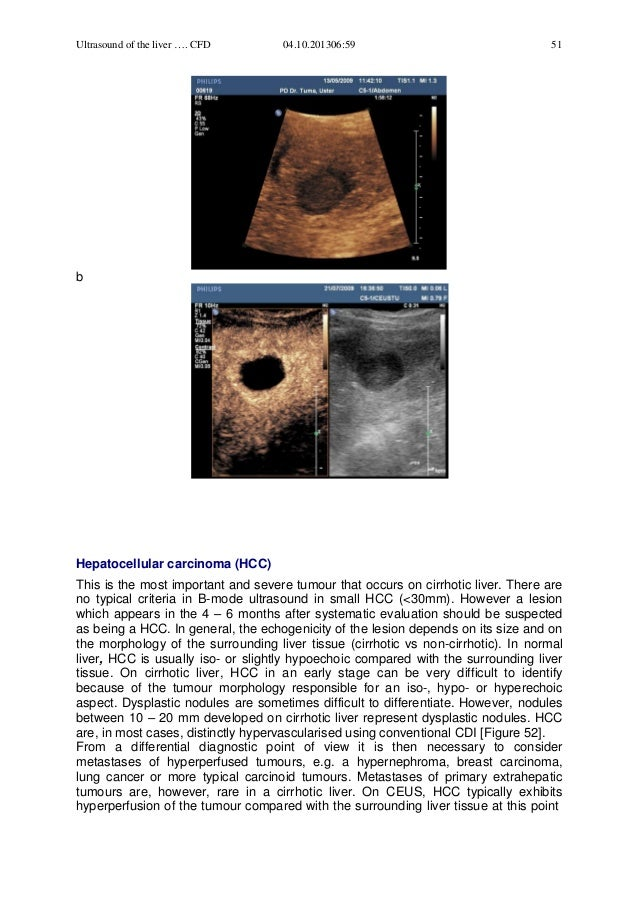 Ecbse ch02-ultrasoundliver article!1 hepatitis c arrticle2