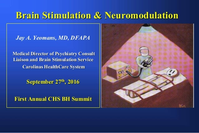 Brain Stimulation & Neuromodulation Jay A. Yeomans, MD, DFAPA Medical Director of Psychiatry Consult Liaison and Brain Sti...