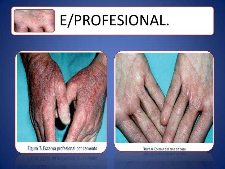 La psoriasis en la fase inicial sobre los codos