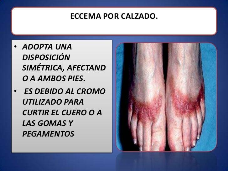 Que untar la piel a atopicheskom la dermatitis