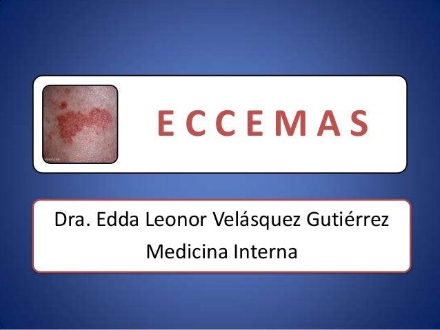 ECCEMASDra. Edda Leonor Velásquez Gutiérrez          Medicina Interna