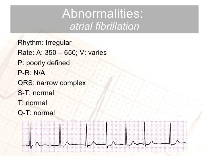 Abnormalities:  atrial fibrillation Rhythm: Irregular Rate: A: 350 – 650; V: varies P: poorly defined P-R: N/A QRS: narrow...