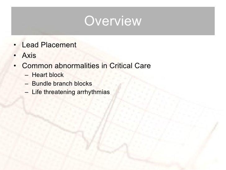 Overview <ul><li>Lead Placement </li></ul><ul><li>Axis </li></ul><ul><li>Common abnormalities in Critical Care  </li></ul>...
