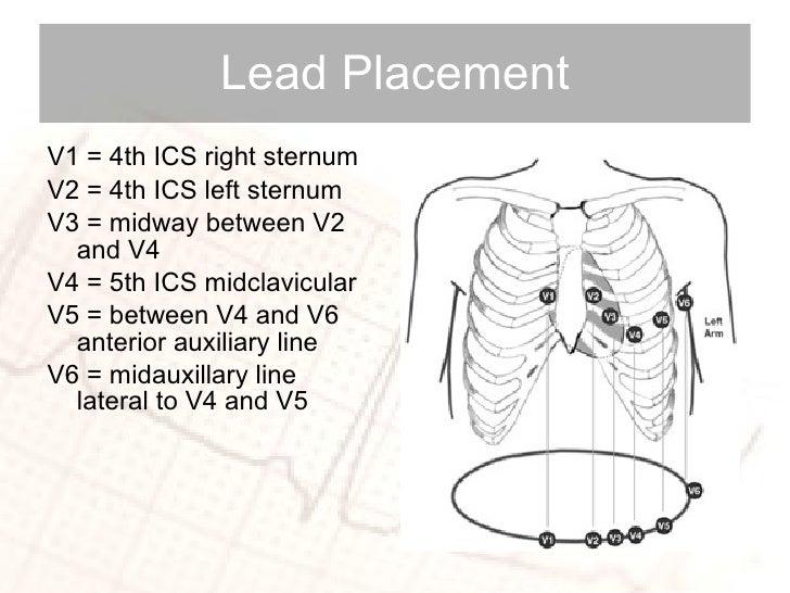Lead Placement <ul><li>V1 = 4th ICS right sternum </li></ul><ul><li>V2 = 4th ICS left sternum </li></ul><ul><li>V3 = midwa...