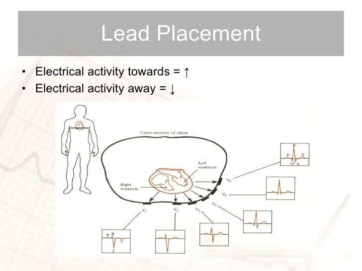 Lead Placement <ul><li>Electrical activity towards =  ↑   </li></ul><ul><li>Electrical activity away =  ↓ </li></ul>