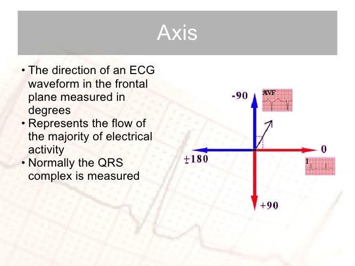 Axis <ul><li>The direction of an ECG waveform in the frontal plane measured in degrees </li></ul><ul><li>Represents the fl...