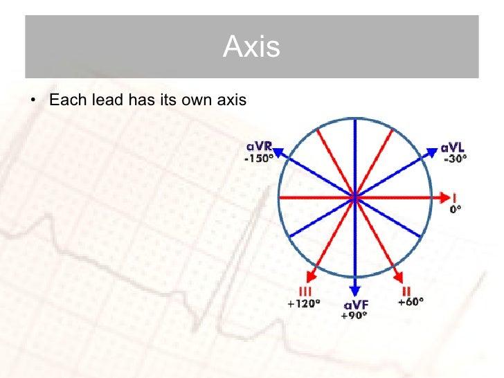 Axis <ul><li>Each lead has its own axis </li></ul>