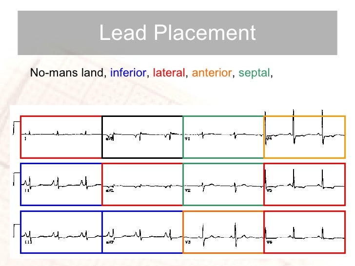 Lead Placement No-mans land,  inferior ,  lateral ,  anterior ,  septal ,
