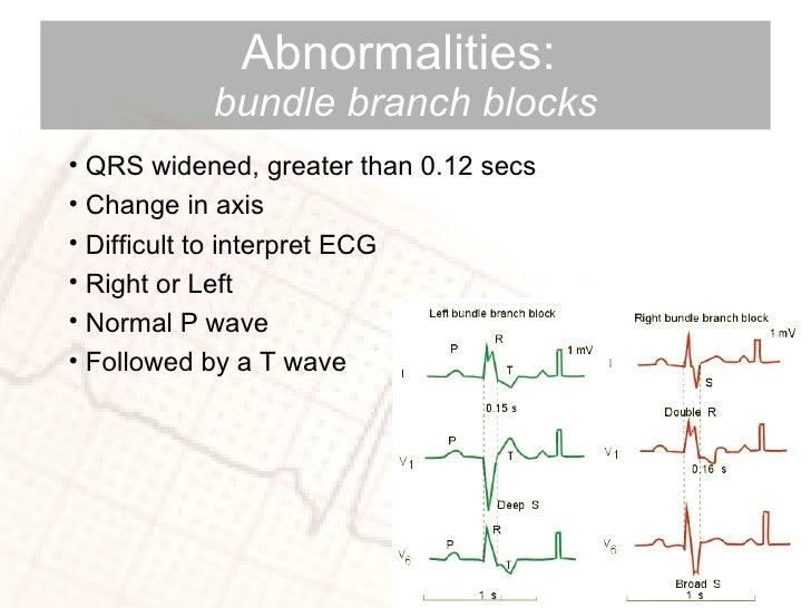 Abnormalities:  bundle branch blocks <ul><li>QRS widened, greater than 0.12 secs </li></ul><ul><li>Change in axis  </li></...