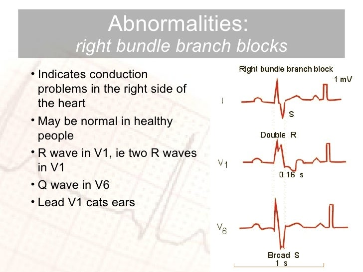 Abnormalities:  right   bundle branch blocks <ul><li>Indicates conduction problems in the right side of the heart </li></u...