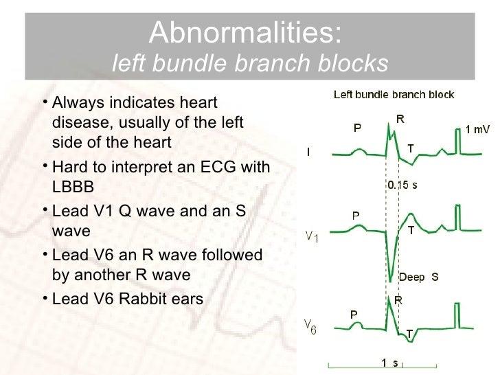 Abnormalities:  left   bundle branch blocks <ul><li>Always indicates heart disease, usually of the left side of the heart ...