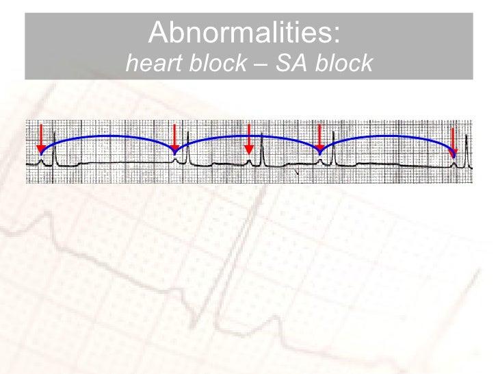 Abnormalities:  heart block – SA block