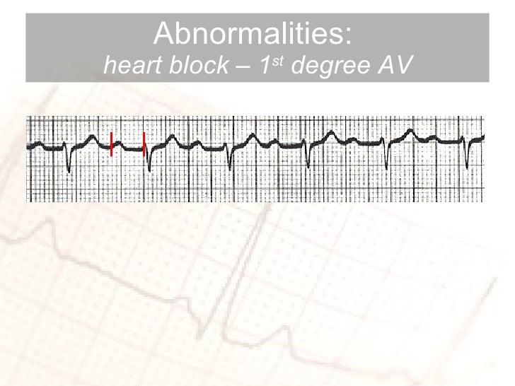Abnormalities:  heart block – 1 st  degree AV