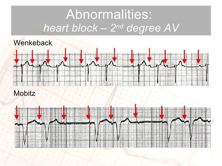 Abnormalities:  heart block – 2 nd  degree AV <ul><li>Wenkeback </li></ul><ul><li>Mobitz </li></ul>