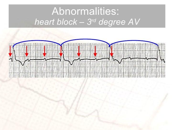 Abnormalities:  heart block – 3 rd  degree AV