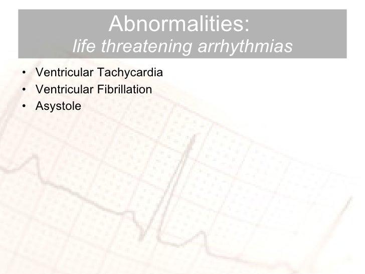 Abnormalities:  life threatening arrhythmias <ul><li>Ventricular Tachycardia </li></ul><ul><li>Ventricular Fibrillation </...