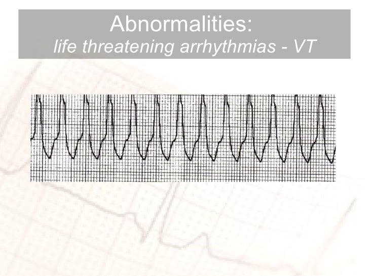 Abnormalities:  life threatening arrhythmias - VT