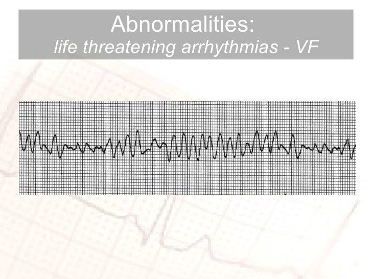 Abnormalities:  life threatening arrhythmias - VF