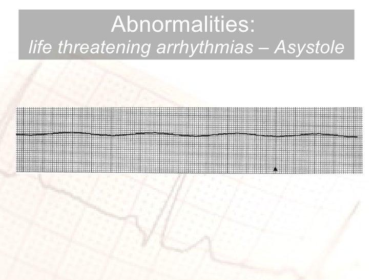 Abnormalities:  life threatening arrhythmias – Asystole