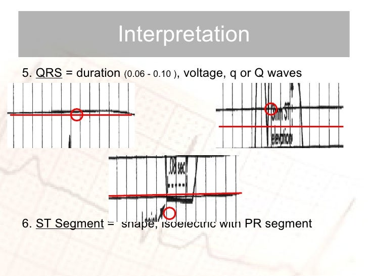 <ul><li>5.  QRS  = duration  (0.06 - 0.10 ) , voltage, q or Q waves </li></ul><ul><li>6.  ST Segment  =  shape, isoelectri...