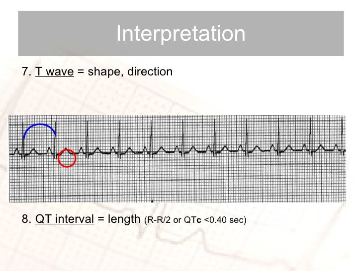 <ul><li>7.  T wave  = shape, direction </li></ul><ul><li>8.  QT interval  = length  (R-R/2 or QT c  <0.40 sec) </li></ul>I...