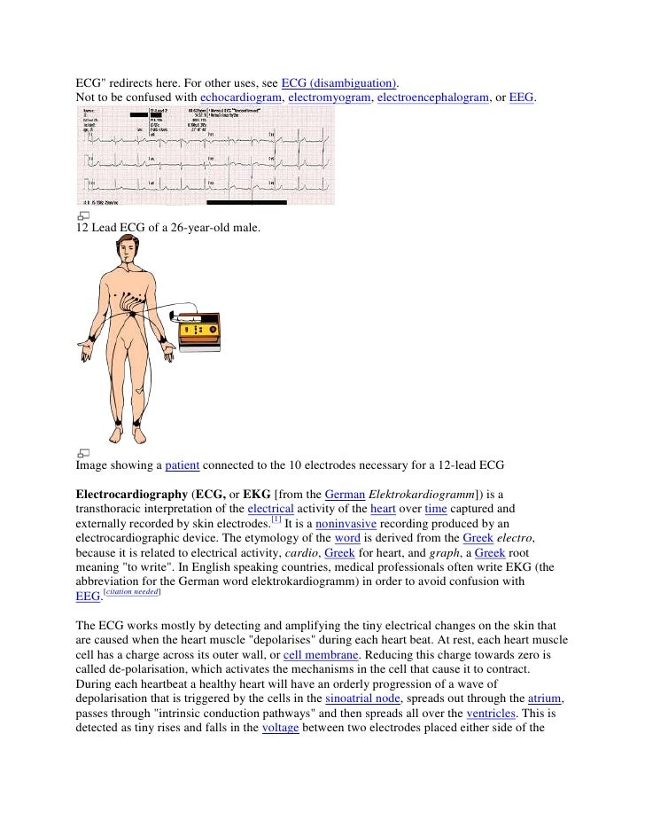 """ECG"""" redirects here. For other uses, see ECG (disambiguation).<br />Not to be confused with echocardiogram, electromyogram..."""