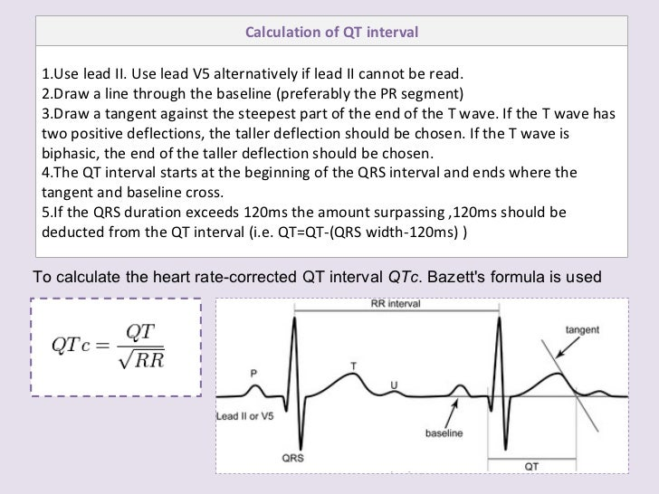 Drawing Lines In Qt : Ecg