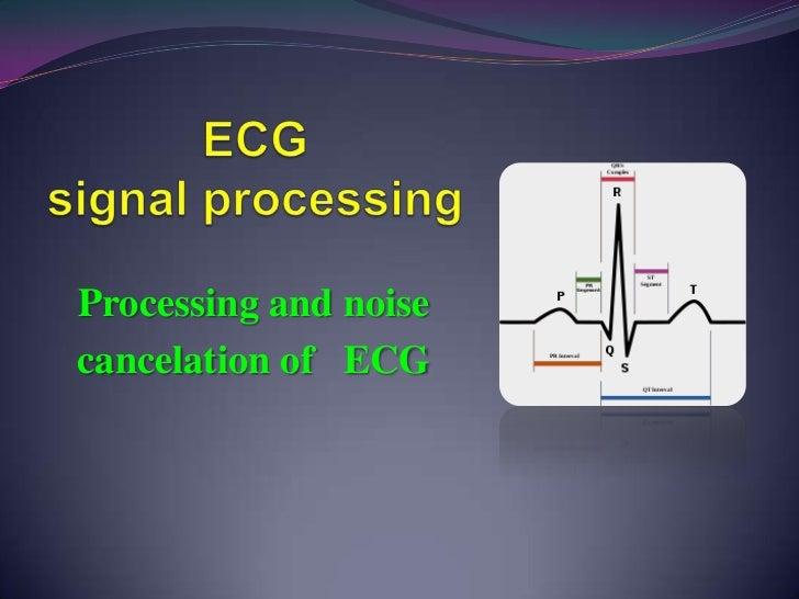 Processing and noisecancelation of ECG