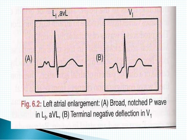 ECG: Indication and In...