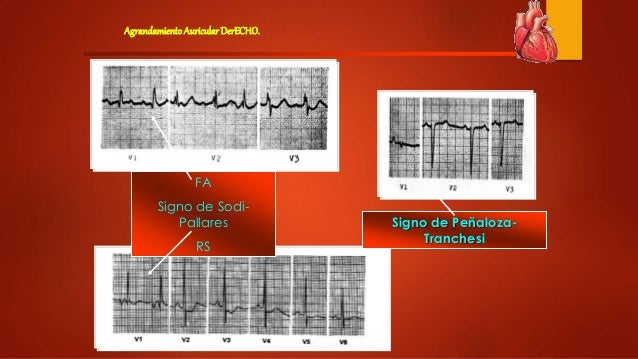 sodi pallares electrocardiografia