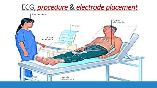 ECG, procedure & electrode placement ...